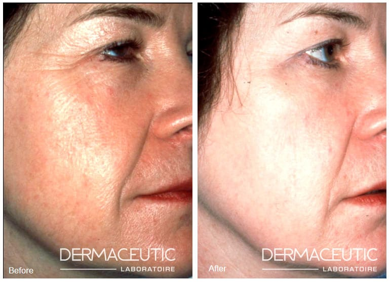 Dermaceutic | Cosmo Peel 18% - Before and After