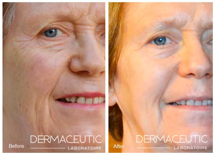 Dermaceutic | Cosmo Peel 20% - Before and After