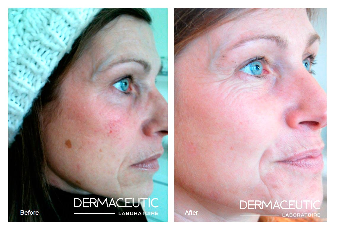 Dermaceutic | Cosmo Peel 15% and 18% - Before and After