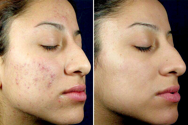 Dermaceutic | Milk Peel - Before and After