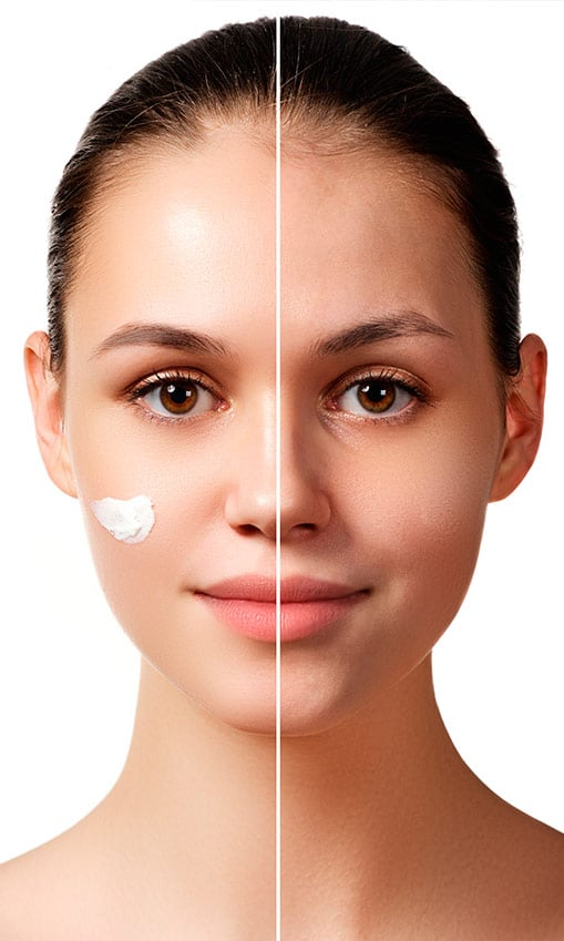 Dermaceutic | Cuidado de la piel - Pigmentación