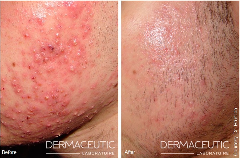 Dermaceutic | Mask Peel - Before and After